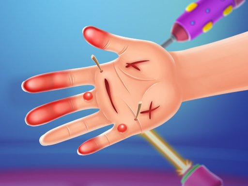 Play Hand Doctor Now!